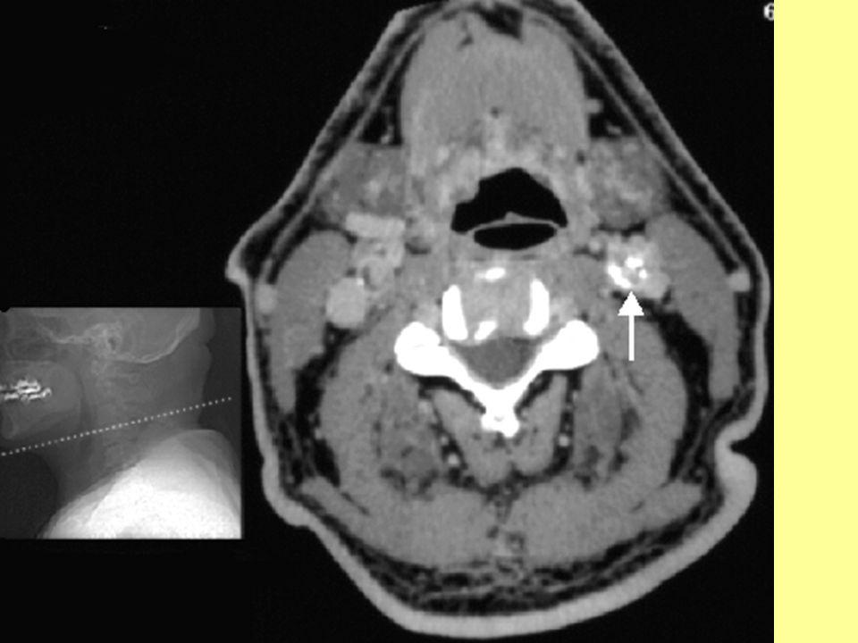 CT vizsgálat A nyak natív, axiális síkú metszetén a bal a.