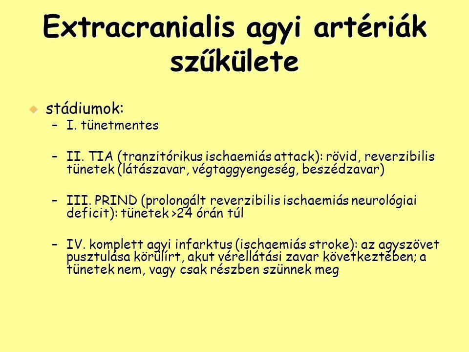 Extracranialis agyi artériák szűkülete