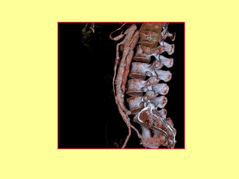 Aorta dissectio
