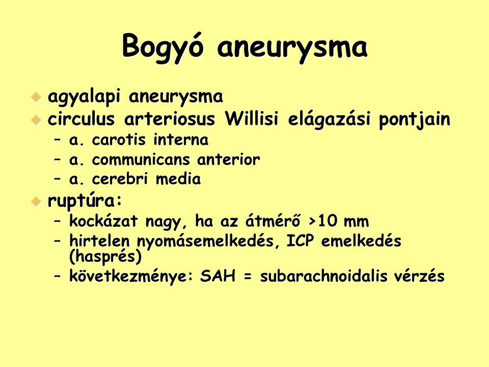 Bogyó aneurysma agyalapi aneurysma