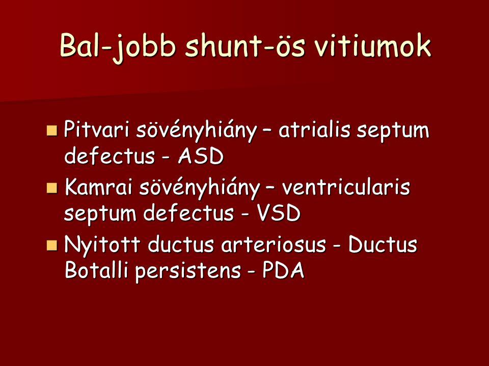 Bal-jobb shunt-ös vitiumok