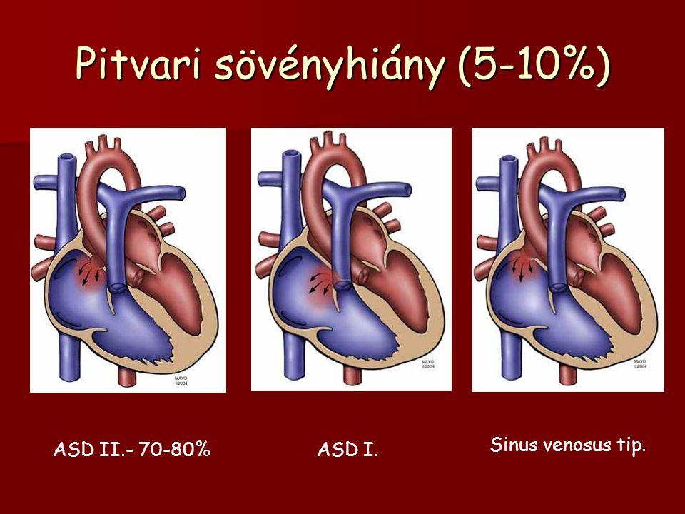 Pitvari sövényhiány (5-10%)