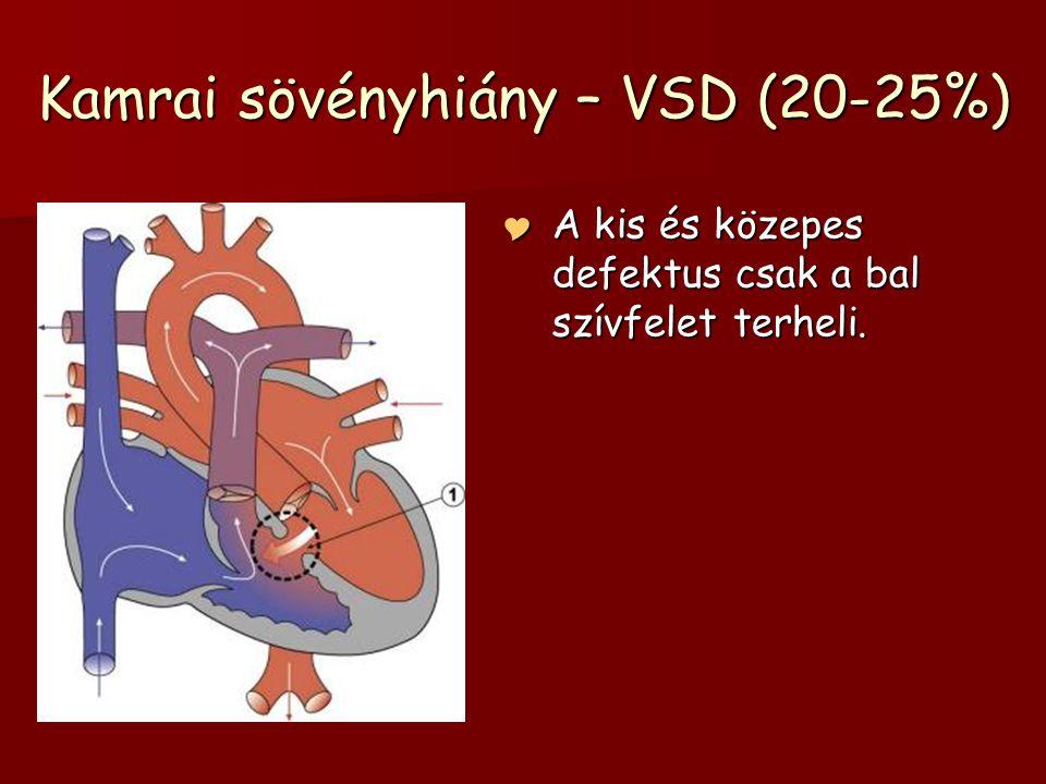 Kamrai sövényhiány – VSD (20-25%)