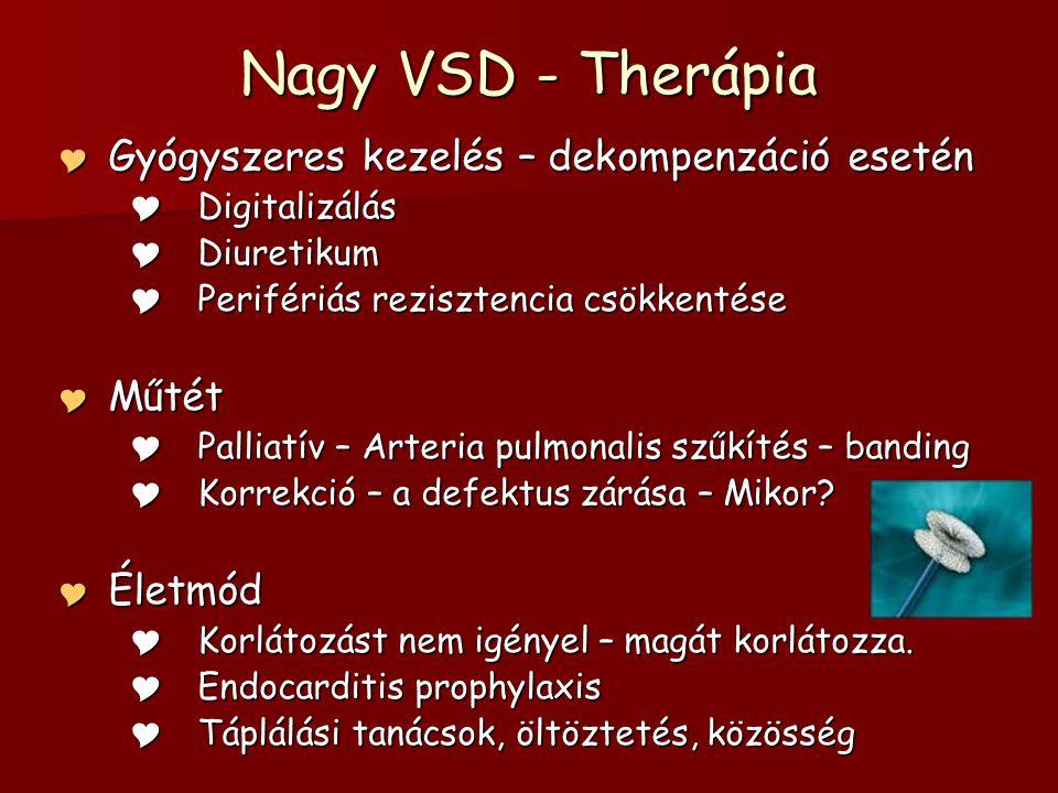Nagy VSD - Therápia Gyógyszeres kezelés – dekompenzáció esetén Műtét