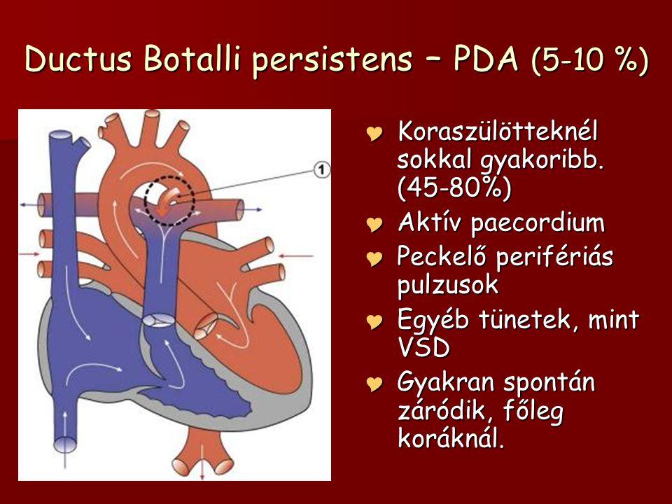 Ductus Botalli persistens – PDA (5-10 %)