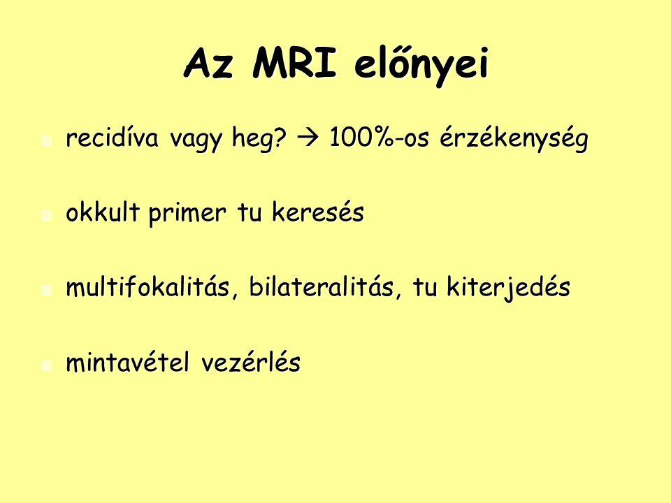 Az MRI előnyei recidíva vagy heg  100%-os érzékenység