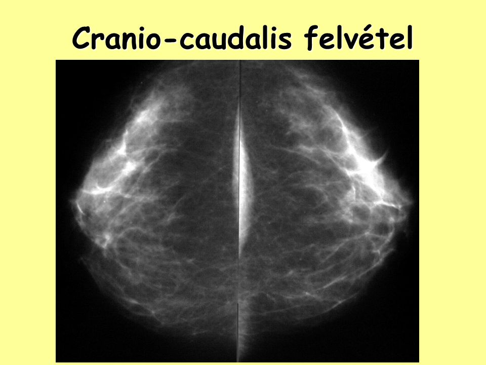 Cranio-caudalis felvétel