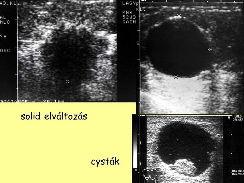 solid elváltozás cysták Ultrahang-vizsgálat