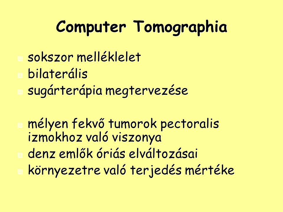 Computer Tomographia sokszor melléklelet bilaterális