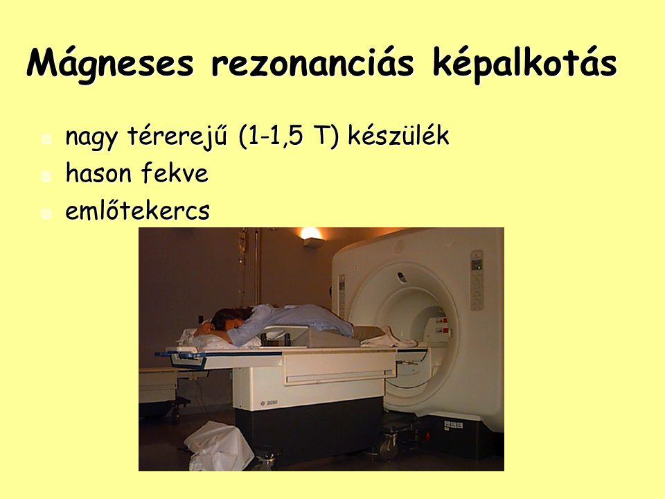 Mágneses rezonanciás képalkotás