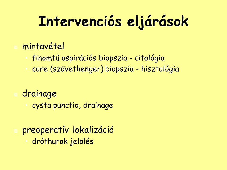 Intervenciós eljárások