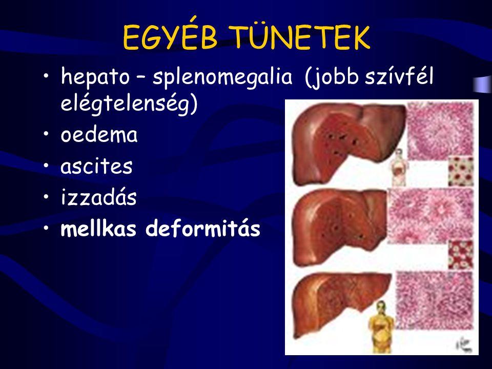 EGYÉB TÜNETEK hepato – splenomegalia (jobb szívfél elégtelenség)