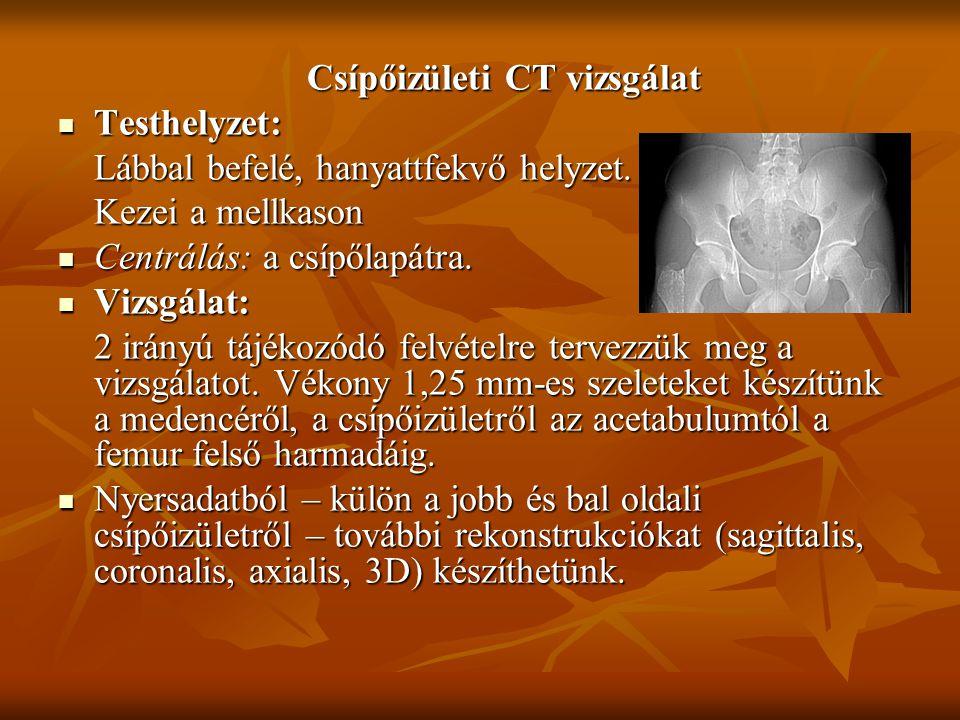 Csípőizületi CT vizsgálat