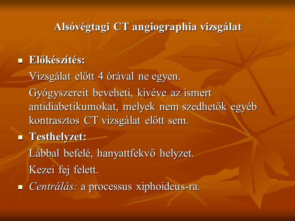 Alsóvégtagi CT angiographia vizsgálat