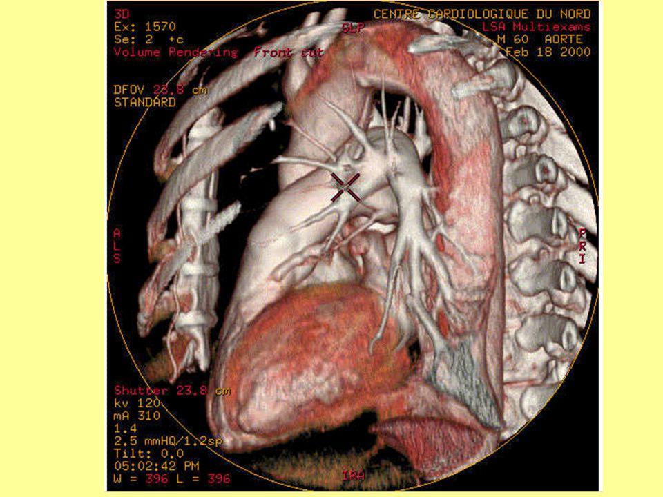 Térhatású, színes CT megjelenítés