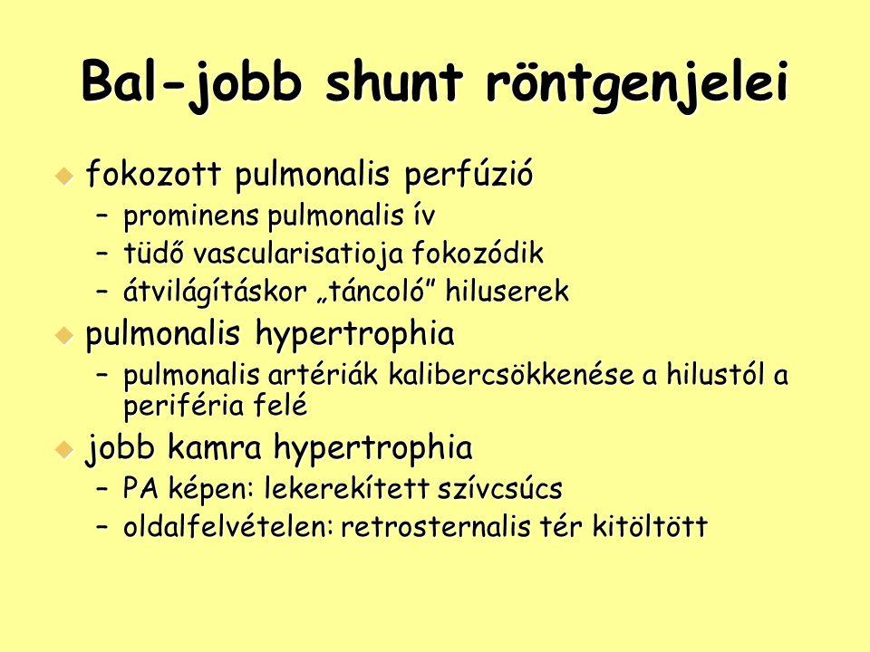 Bal-jobb shunt röntgenjelei