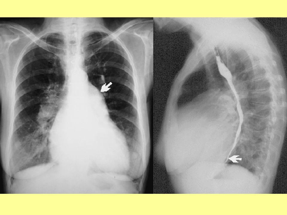 kombinált Mi vitium - Kétirányú szívfelvétel: A mitralis stenosisnál leírt elváltozások kifejezettebbek, a szív még nagyobb, a jobb kamra dilatatiójához a bal kamra megnagyobbodása (nyíl) is társul.
