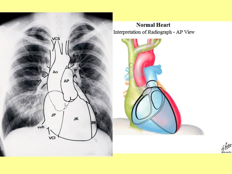 A szív és nagyerek topográfiája