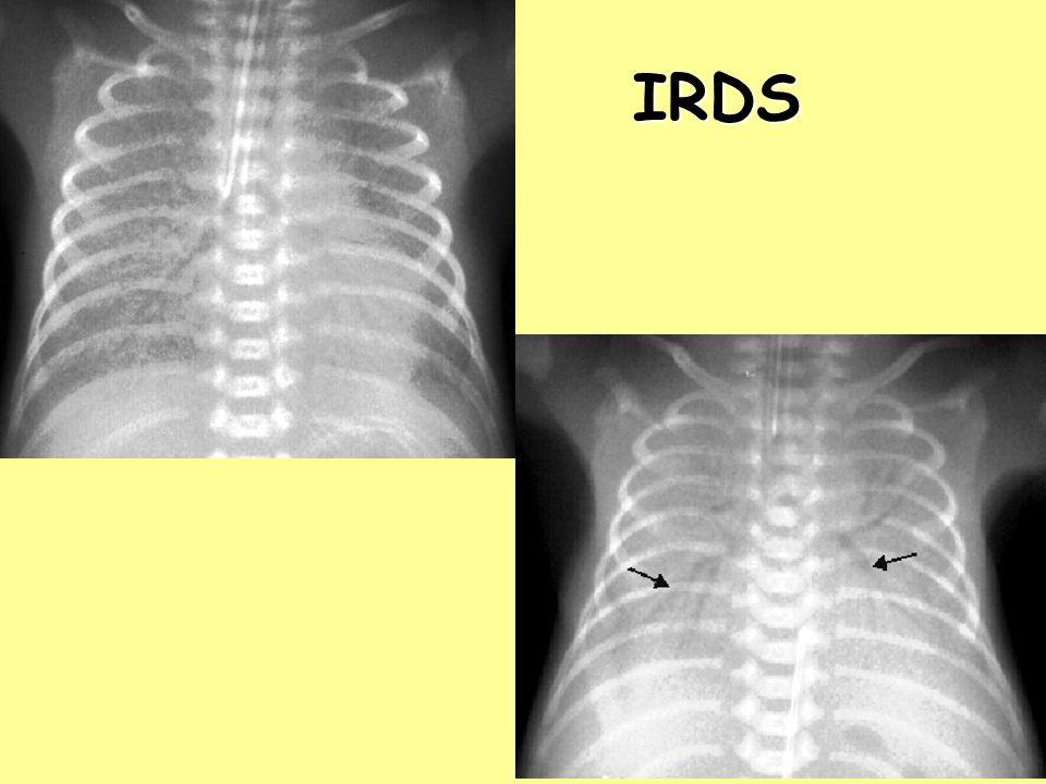 IRDS Respiratorikus distress-szindróma