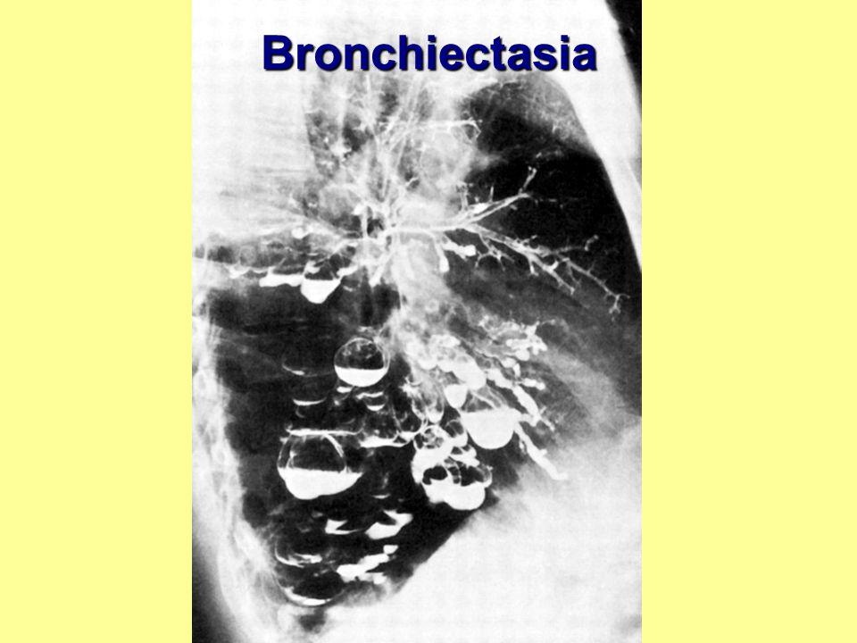 Bronchiectasia Bronchiectasia