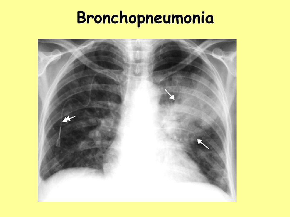 Bronchopneumonia Bronchopneumonia