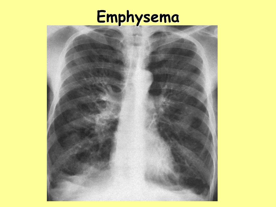 Emphysema Emphysema.