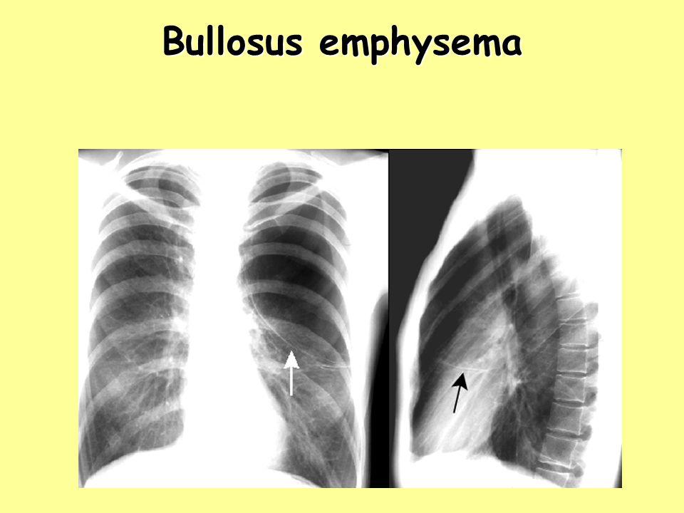 Bullosus emphysema Bullosus emphysema