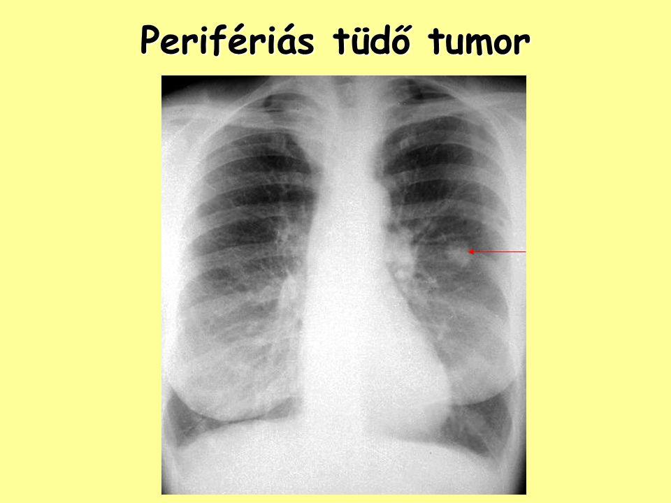 Perifériás tüdő tumor Perifériás tüdő tumor