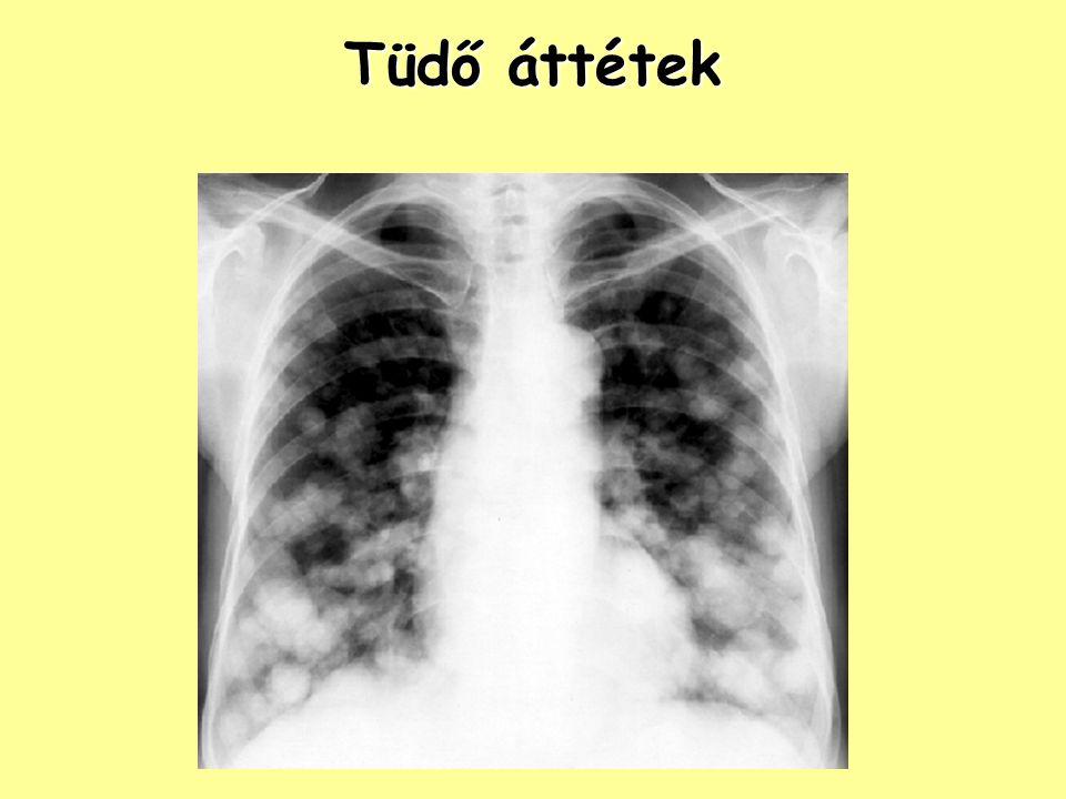 Tüdő áttétek Tüdő áttétek