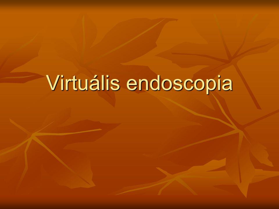 Virtuális endoscopia