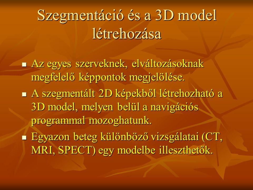 Szegmentáció és a 3D model létrehozása