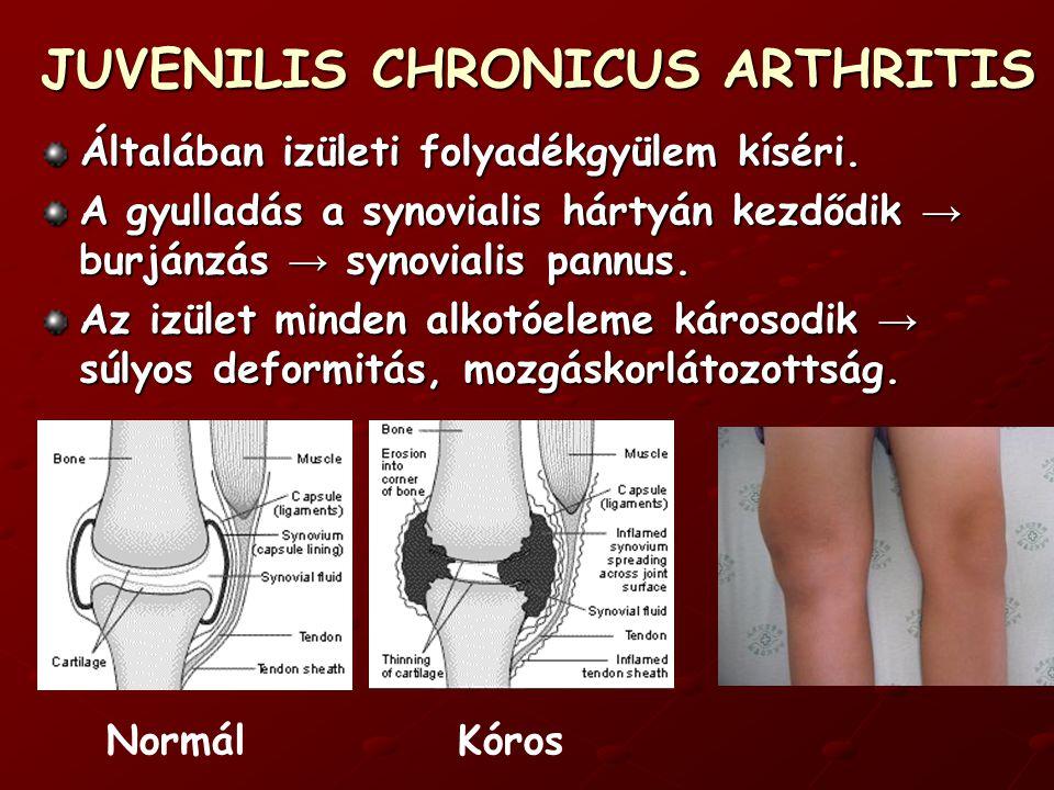JUVENILIS CHRONICUS ARTHRITIS