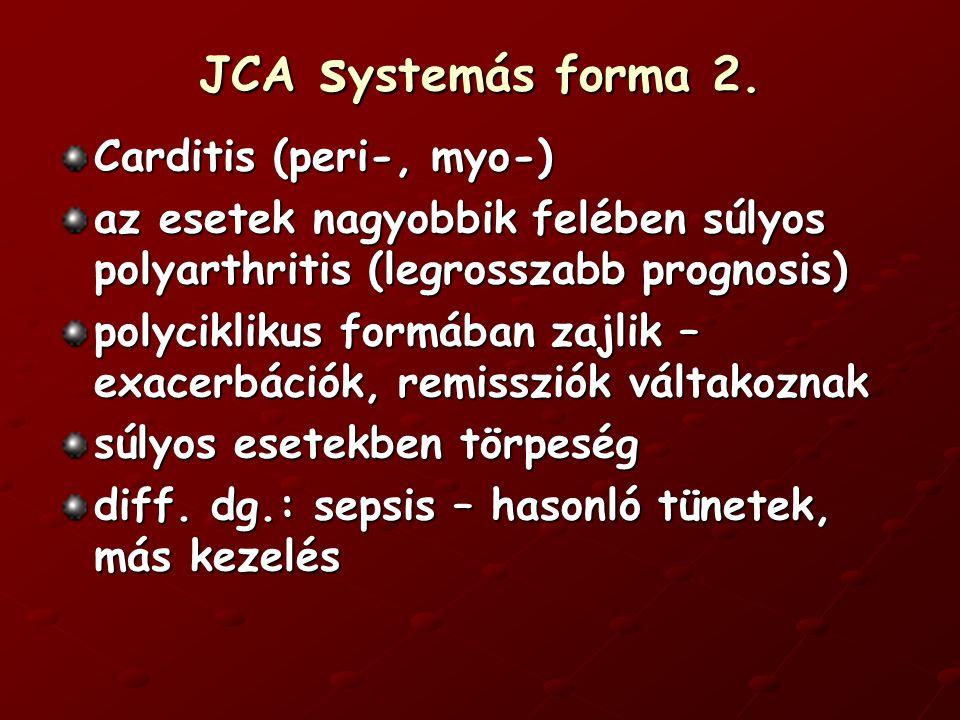 JCA systemás forma 2. Carditis (peri-, myo-)