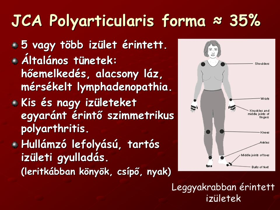 JCA Polyarticularis forma ≈ 35%