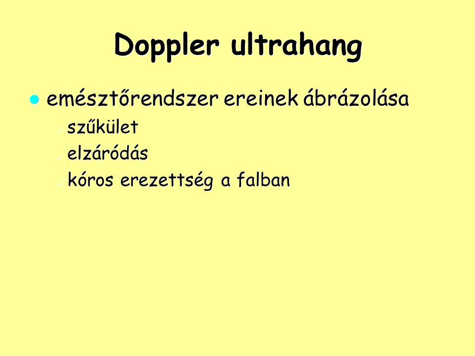 Doppler ultrahang emésztőrendszer ereinek ábrázolása szűkület