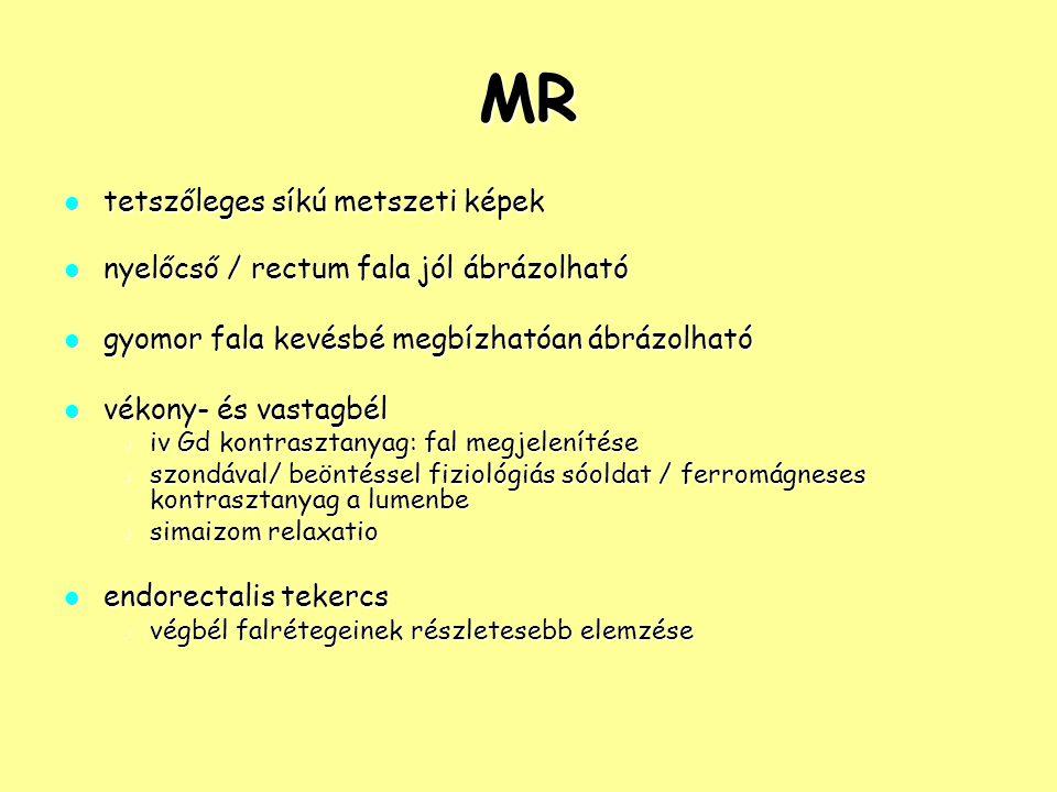 MR tetszőleges síkú metszeti képek