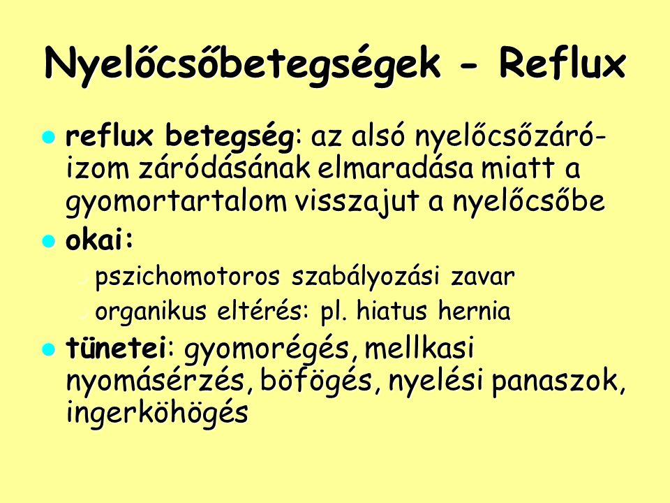 Nyelőcsőbetegségek - Reflux