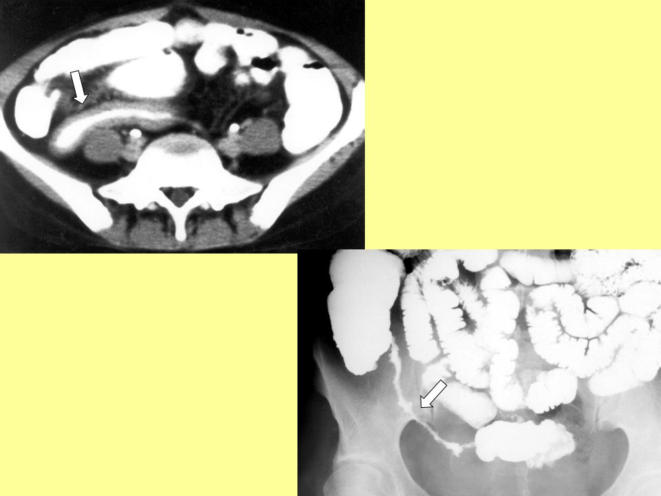 Crohn-betegség