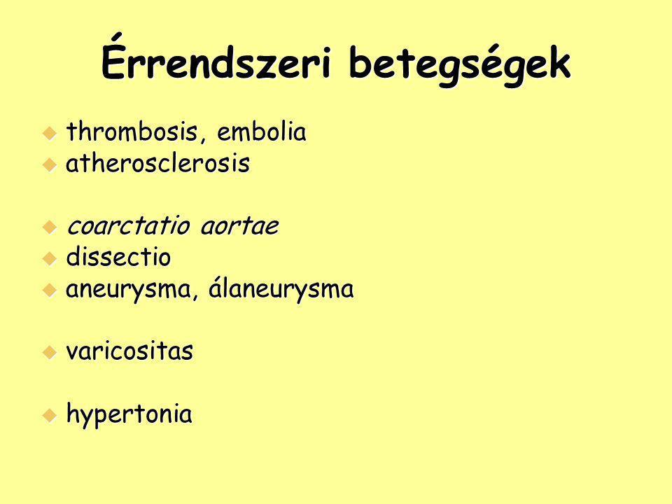 Érrendszeri betegségek