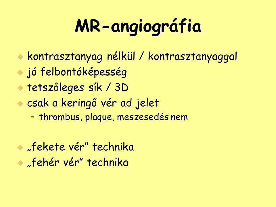 MR-angiográfia kontrasztanyag nélkül / kontrasztanyaggal