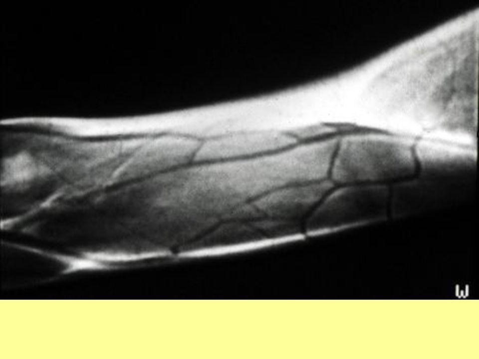 MR-phlebogram A felkar felületes vénáinak tágassága és lefutása szabályos.