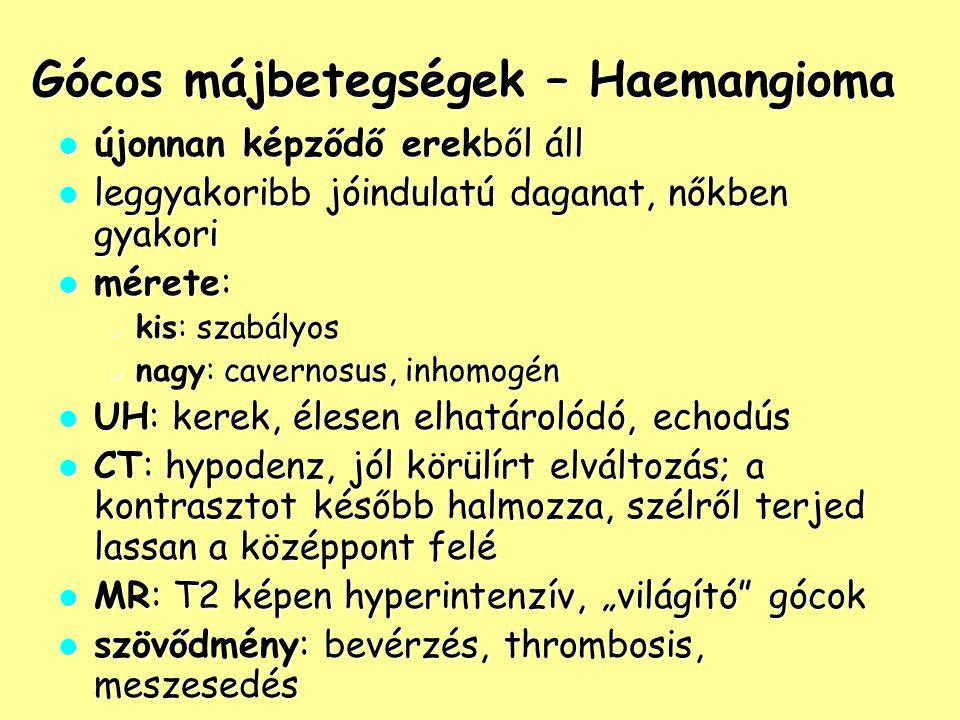 Gócos májbetegségek – Haemangioma