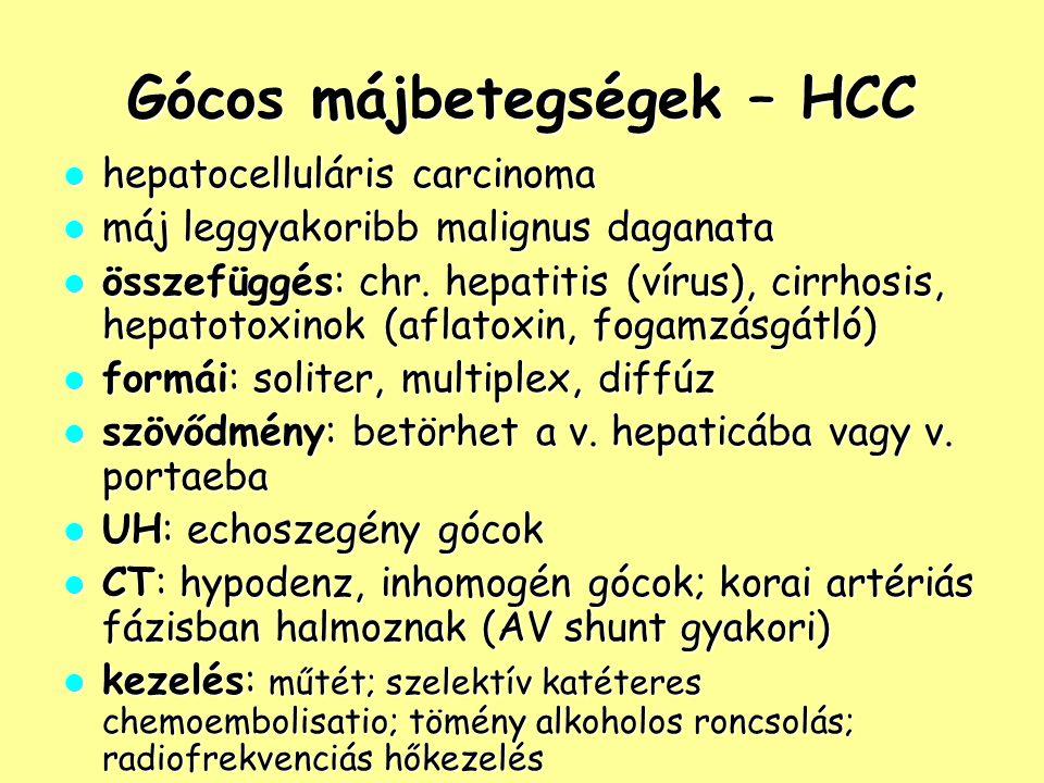 Gócos májbetegségek – HCC
