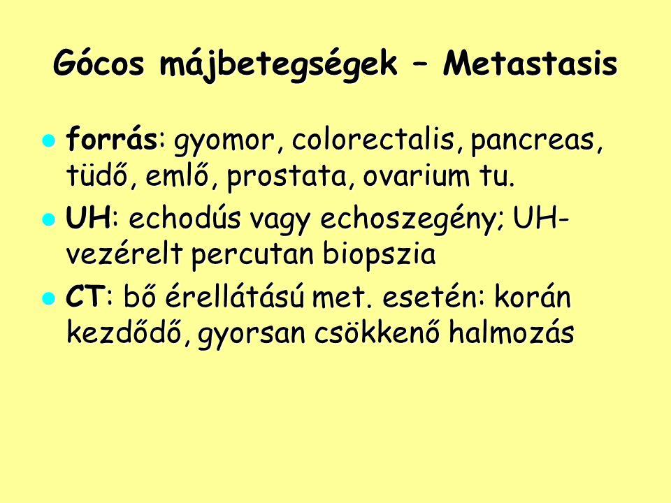 Gócos májbetegségek – Metastasis