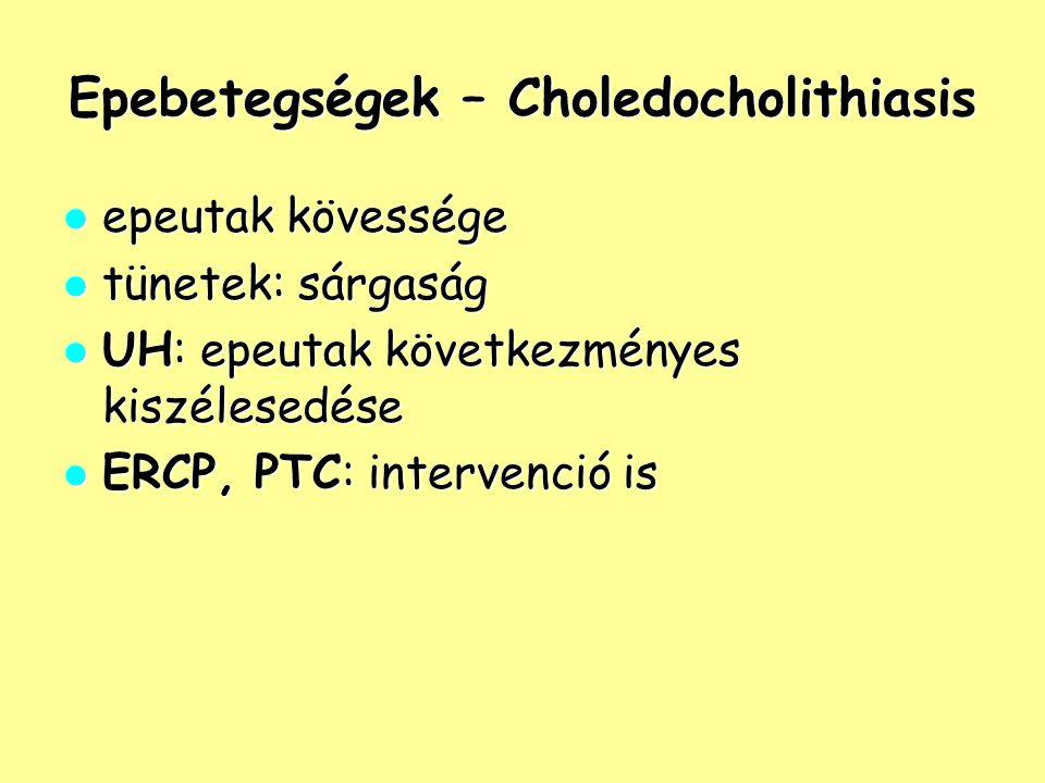 Epebetegségek – Choledocholithiasis