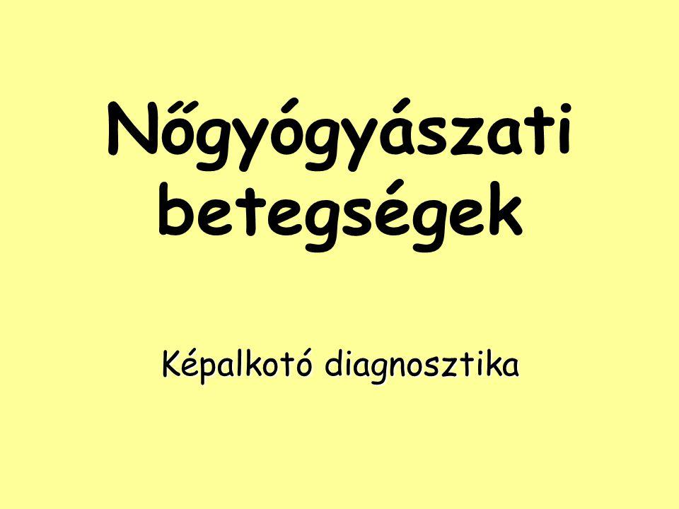 Nőgyógyászati betegségek