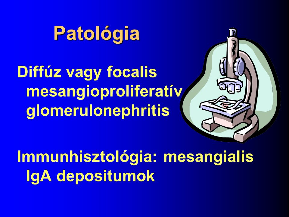 Patológia Diffúz vagy focalis mesangioproliferatív glomerulonephritis