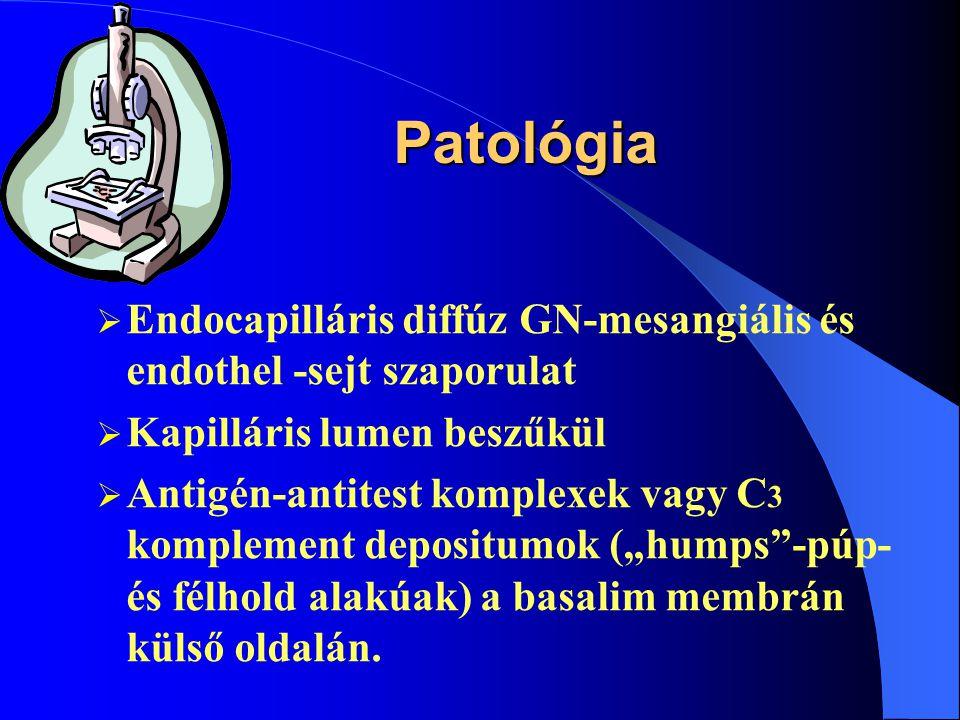 Patológia Endocapilláris diffúz GN-mesangiális és endothel -sejt szaporulat. Kapilláris lumen beszűkül.
