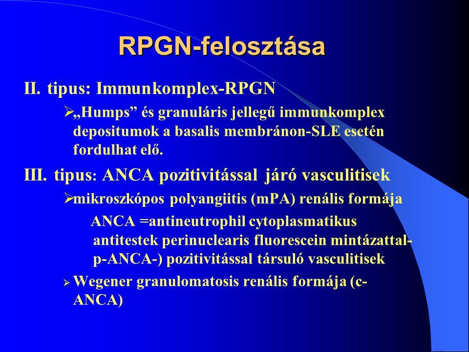 RPGN-felosztása II. tipus: Immunkomplex-RPGN