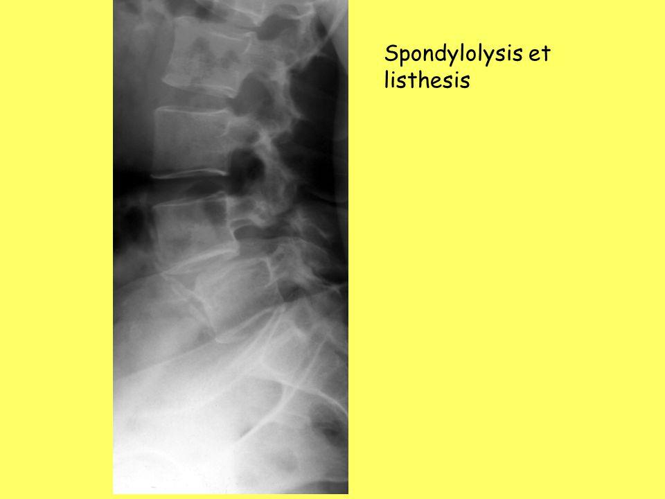 Spondylolysis et listhesis
